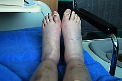 Edema (Generalized)